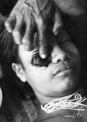 A tatuagem facial serve de marca tribal, e faz parte da segunda iniciação, por volta dos 11 anos. Foto: Claudia Andujar/s.d.