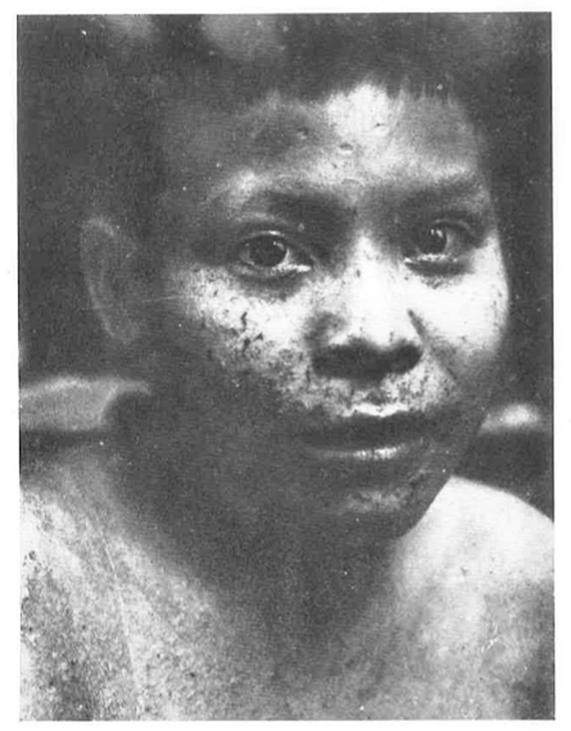 Photo of a Puruborá boy with a skin disease known as 'chimbêrê'. Photograph by Olympio da Fonseca Filho, taken on the upper São Miguel River in 1924. These are the first images of the Puruborá, a few years after contact.