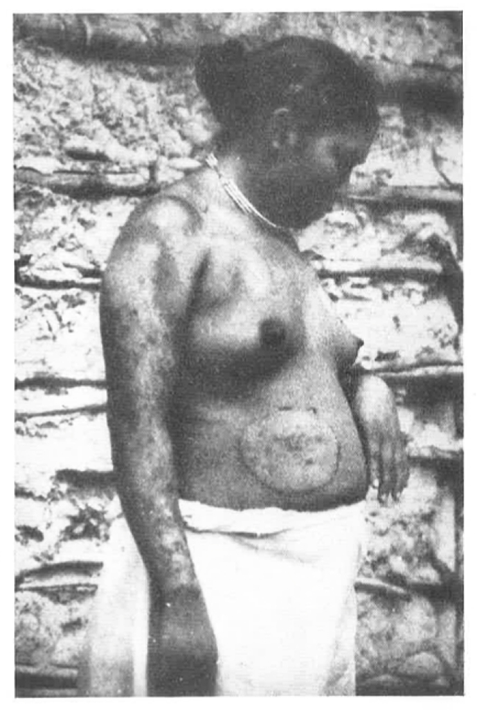 A Puruborá woman with a skin disease known as 'chimbêrê'. Photograph by Olympio da Fonseca Filho, taken on the upper São Miguel river in 1924. These are the first images of the Purubora, a few years after the contact.